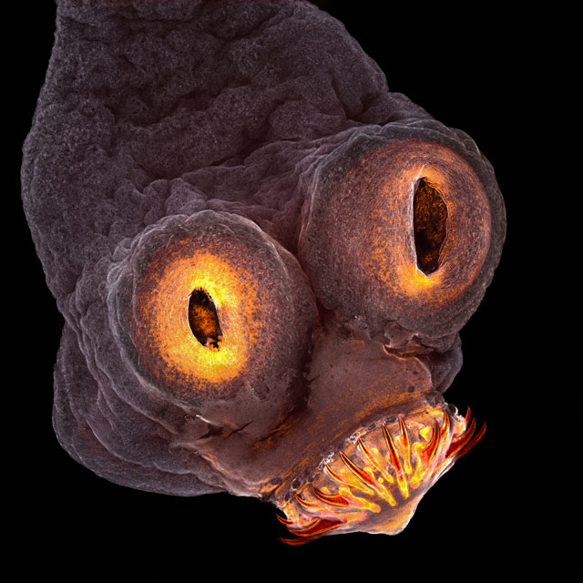 Taenia solium (tapeworm) everted scolex, © Teresa Zgoda, Rochester Institute of Technology (RIT), Rochester, New York, USA, 4TH PLACE, Nikon's Small World — Photomicrography Competition