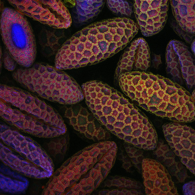 Lily pollen, © Dr. David A. Johnston, University of Southampton, University Hospital Southampton, Biomedical Imaging Unit, Southampton, United Kingdom, 6TH PLACE, Nikon's Small World — Photomicrography Competition