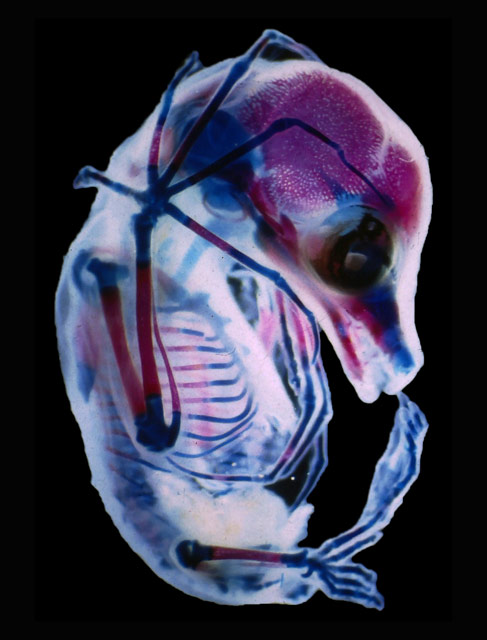 3rd trimester fetus of Megachiroptera (fruit bat), © Dr. Rick Adams, University of Northern Colorado, Department of Biological Sciences, Greeley, Colorado, USA, 15TH PLACE, Nikon's Small World — Photomicrography Competition